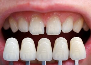 Porcelain veneers compared to natural teeth.