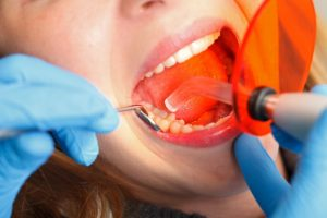 dentist curing composite resin