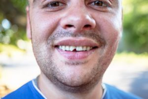 man smiling with a chipped tooth